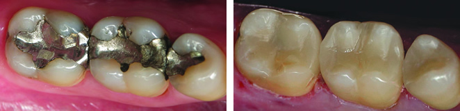 CEREC Before and After Case #1